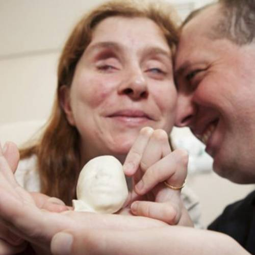 Blind Couple Gets 3D-Printed Ultrasound To Help Them Feel Their Unborn Baby
