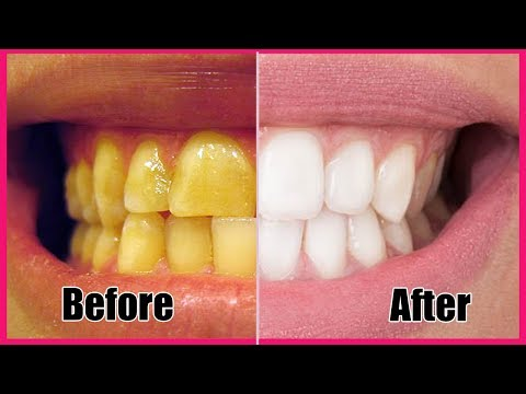 Whiten Your Yellow Teeth  Naturally In Less Than 2 Minutes!