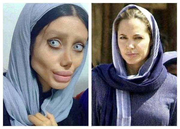 The 19-year-old has 50 surgeries to look like Angelina Jolie