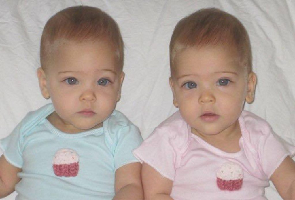 They were labelled the 'world's most beautiful twins' 8 years ago -but now look what the girls look like today