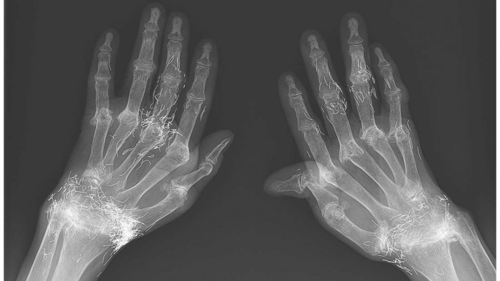 X-ray shows woman has pieces of gold in her hands